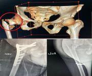 تدخل جراحي ينجح بتثبيت كسر لمريض خمسيني يعاني من شلل الأطفال في مستشفى الاسياح